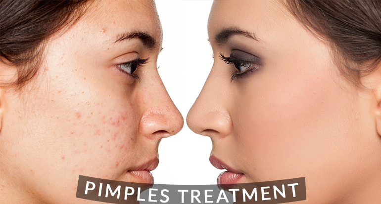 Acne And Pimple Treatment